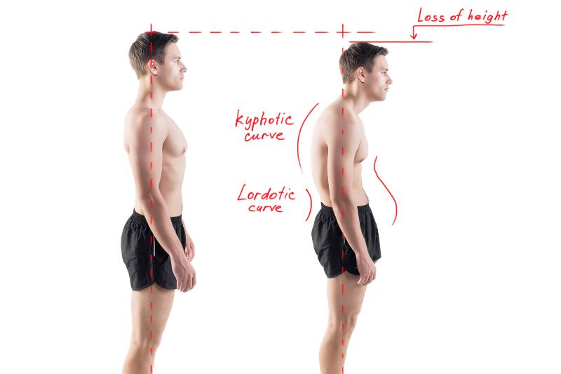 Gli-effetti-dello-shiatsu-sulla-postura